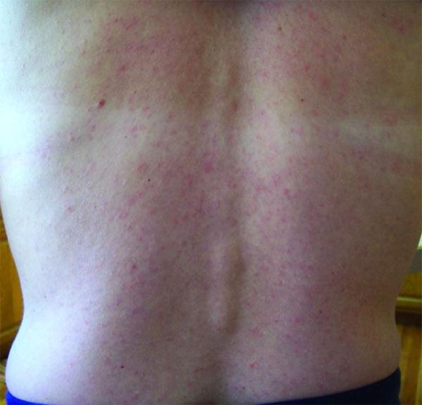 Image: Rash caused by Zika virus.