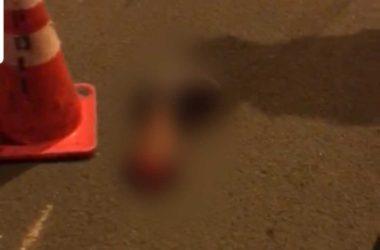 Image of victim's leg on street
